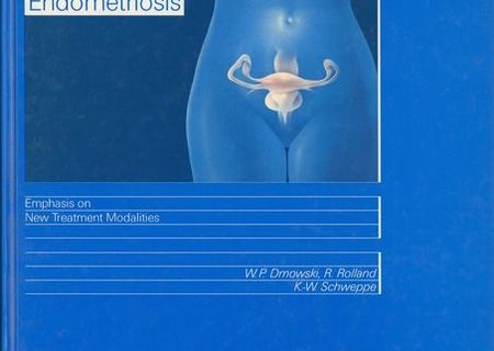 Endometriosis Emphasis on New Treatment Modalities,1989